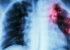 A concern towards Zoonotic Tuberculosis